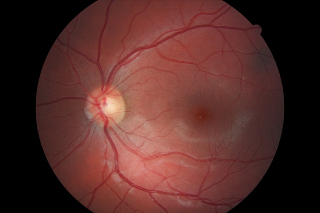 Retinal Photography